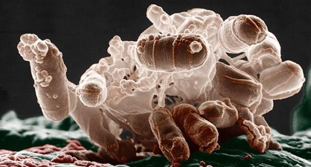 La presencia de la bacteria E.coli tiene relación directa con la cadena de producción y preparación de los alimentos.