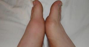 Un exceso de ácido úrico puede producir inflamaciones, con calor y enrojecimiento localizadas generalmente en la articulación del dedo gordo del pie.